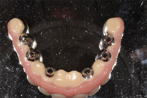 full arch screw retained pfm 2