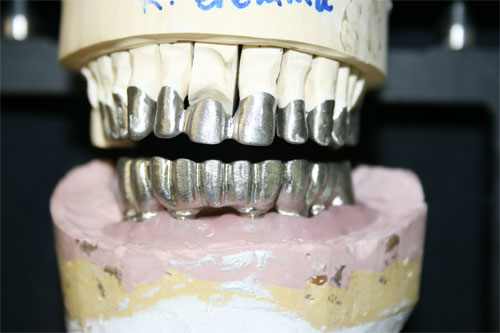 pfm screw retained implant 1