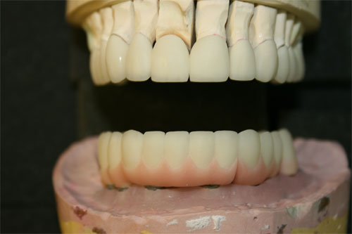 pfm screw retained implant 2