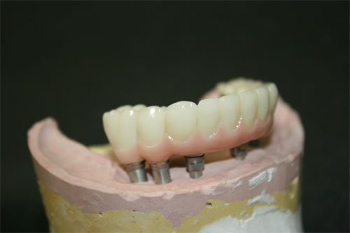 pfm screw retained implant 6