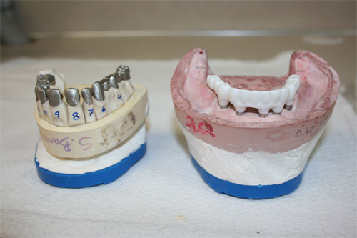 zirc screw retained implant framework 4